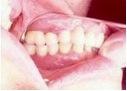 implantate12