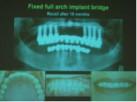 implantate13