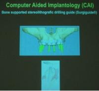 implantate20